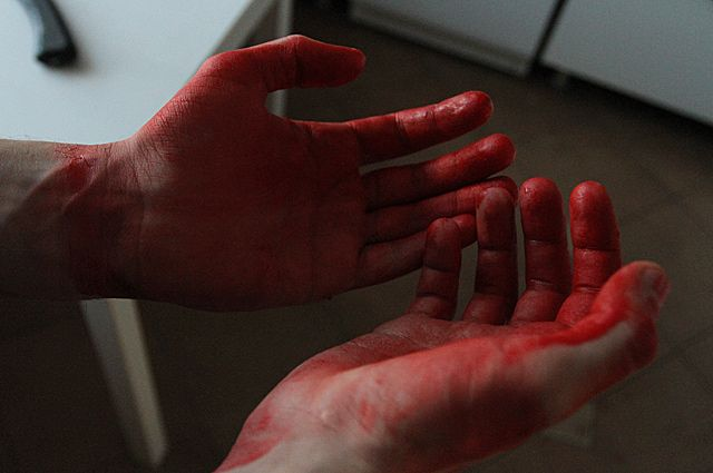 ВСызрани женщина ранила ножом напавшего нанее сожителя