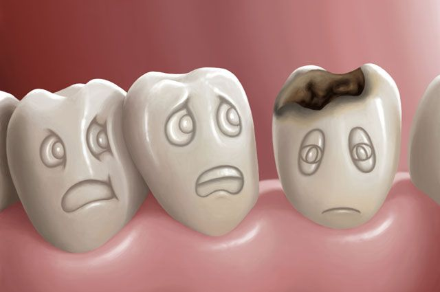 Все свои! Как защитить зубы от кариеса