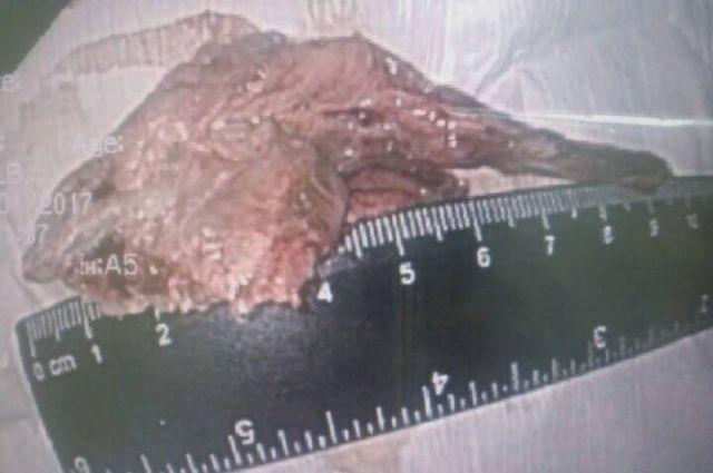 Неизвестно как долго инородное тело находилось в пищеводе