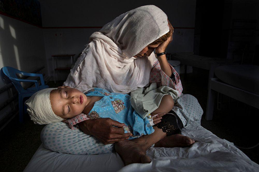 Категория «Повседневная жизнь», первое место в номинации «Отдельная фотография». Наджиба держит на руках своего двухлетнего племянника Шабира, пострадавшего от взрыва бомбы в Кабуле, март 2016 года.