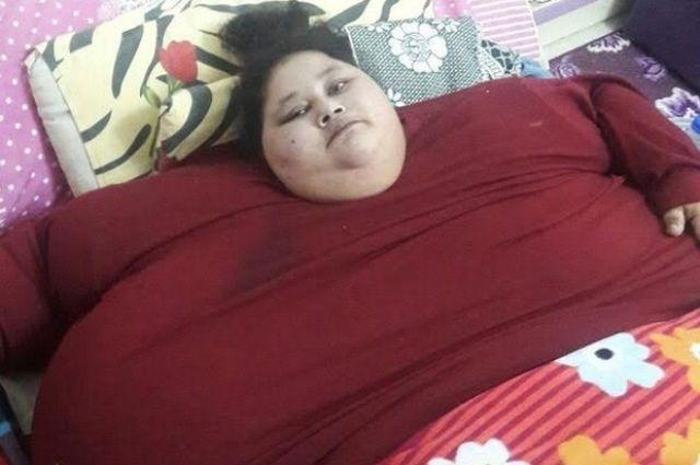 500 килограммовая женщина надеется на выздоровление