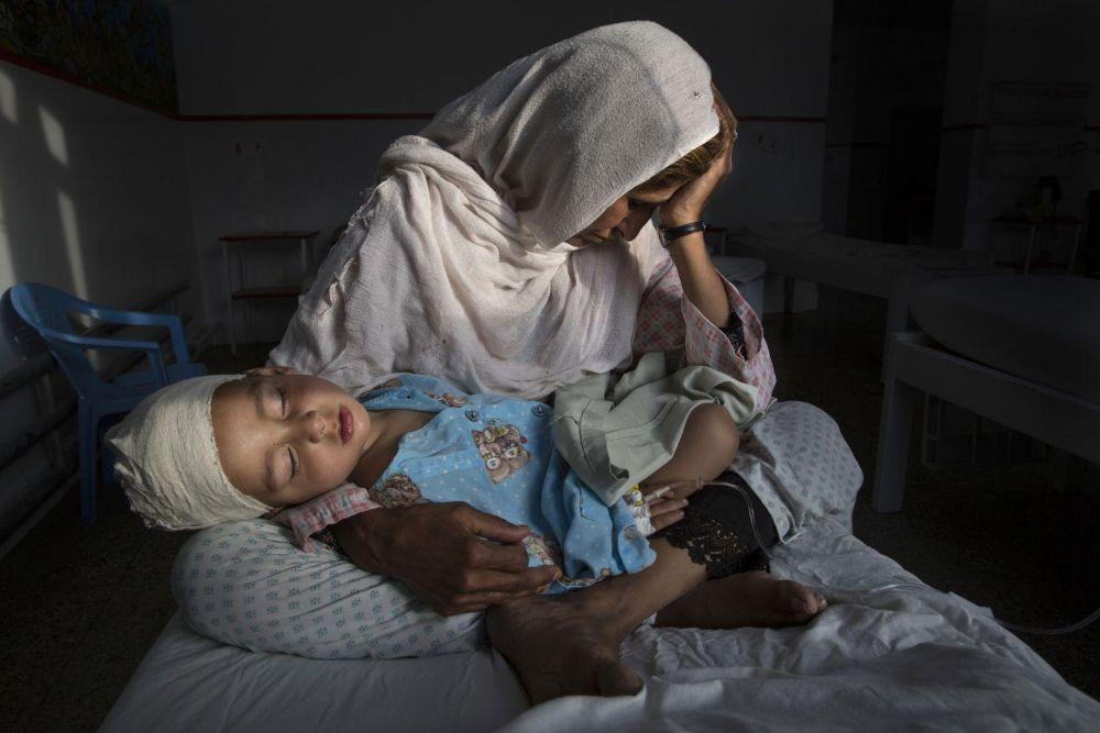 Изображение с матерью, которая держит на руках 2-летнего ребенка, пострадавшего от взрыва бомбы, заняло первое место в категории «Повседневная жизнь»