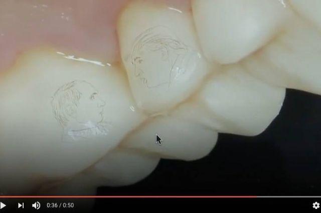 В Сочи стоматолог выгравировал на зубах клиента портреты Владимира Путина и Дональда Трампа.
