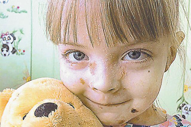 Пластилиновая Маша. Девочке с буллёзным эпидермолизом требуется операция