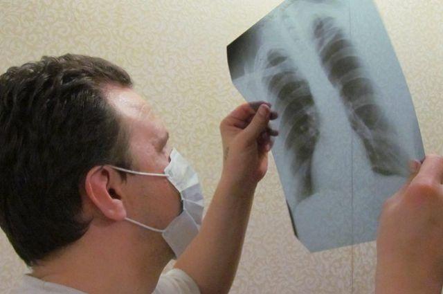 В2016 выявили 565 случаев активного туберкулеза— Роспотребнадзор Якутии