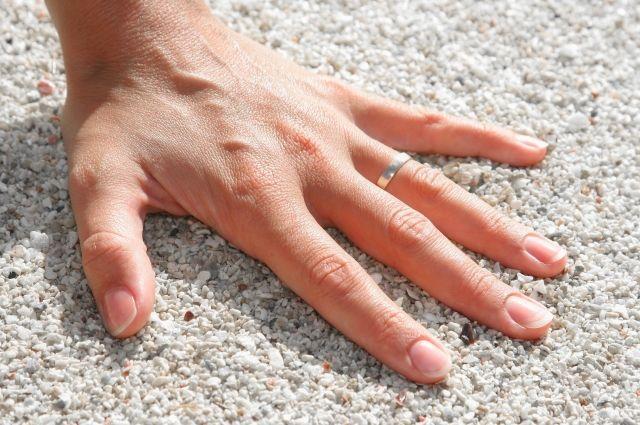 Спасатели сняли серебряное кольцо с пальца при помощи кусачек.
