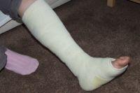 Из-за перелома женщине пришлось пройти длительный лечебный курс.