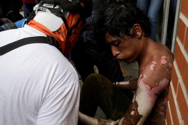 Мужчина, пострадавший в результате столкновения с ОМОН во время митинга против президента Николаса Мадуро в Каракасе.