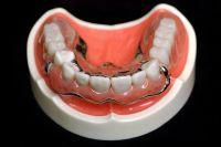 Чем лечить язвочки во рту у взрослых