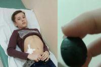 12-летний парень провёл в больнице пять дней.