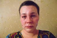 Наталья освидетельствовала полученные побои в травмпукте.