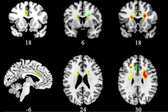 Ученые назвали более результативный способ снизить риск появления слабоумия