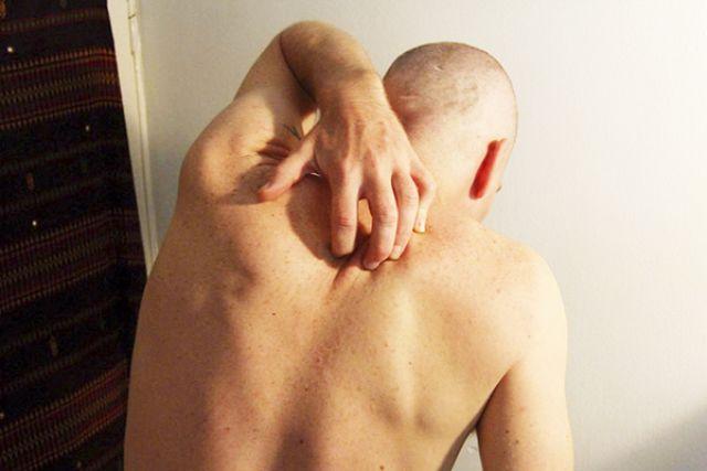 Чесотка стала поводом для проверки Ширшинского психоневрологического интерната