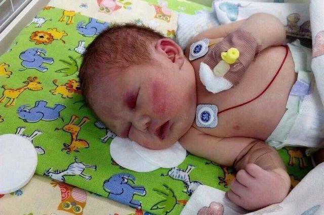 19 июля девочке сделали операцию на сердце.