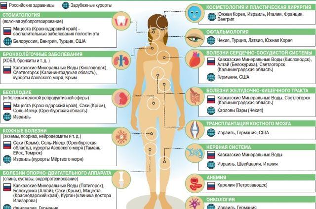 Лучшие места для медицинского туризма. Инфографика