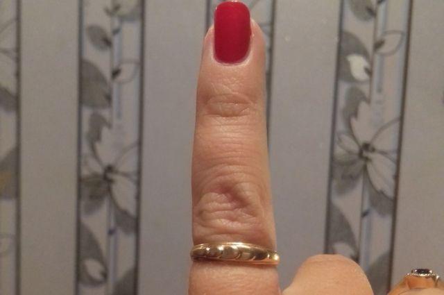 Гражданин Пензы откусил женщине часть пальца