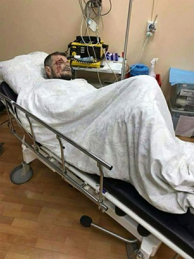 Депутат Верховного Совета Украины Мосийчук ранен после взрыва в Киеве.