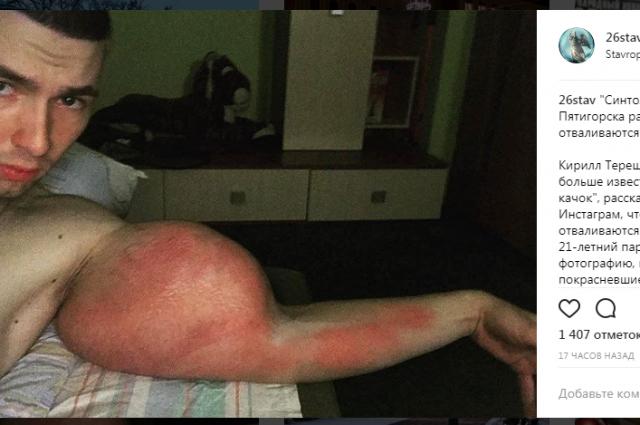 Кирилл Терёшин освободился отсинтоловых «рук-базук»