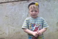 Мальчик упал и сломал руку, а через несколько дней попал в больницу с осложнениями.
