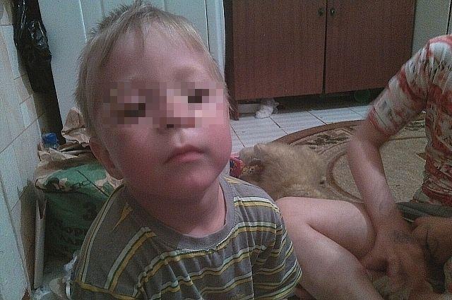 После перелома руки у ребенка началась пневмония.