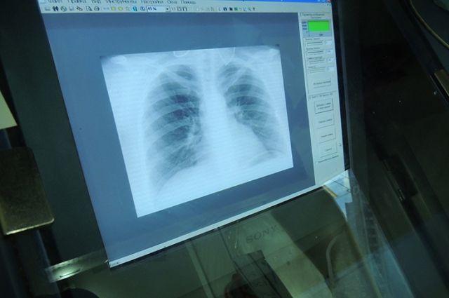 Киевляне до конца января могут бесплатно обследоваться на флюорографе