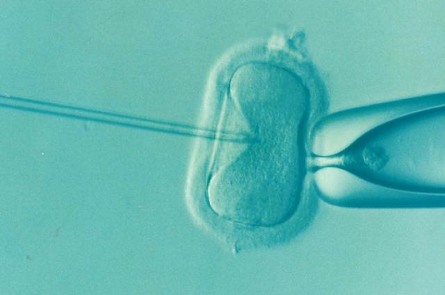 Существует много видов вспомогательных репродуктивных технологий.