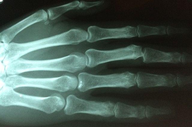 Тюменские медики собрали пациентке руку изосколков