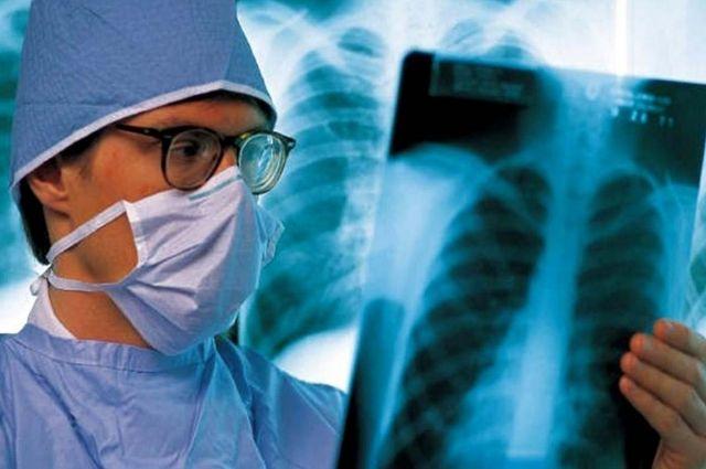 Главное оружие в борьбе с туберкулезом  - флюорографическое обследование.