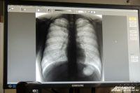 В настоящее время данный человек проходит стационарное лечение в Республиканском противотуберкулёзном диспансере.