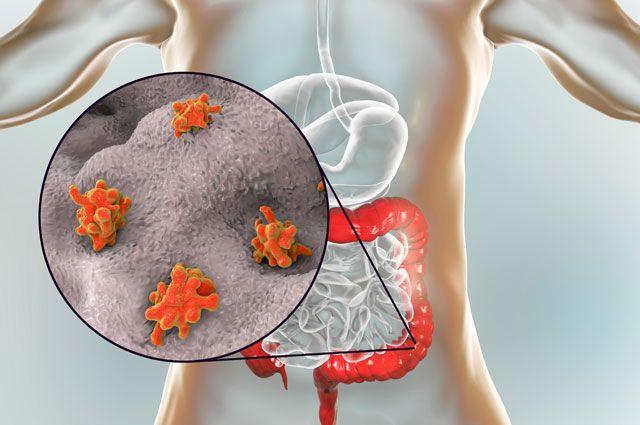 Paraziti na mozgu, Parazit u crevima simptomi - Gliste u crevima simptomi
