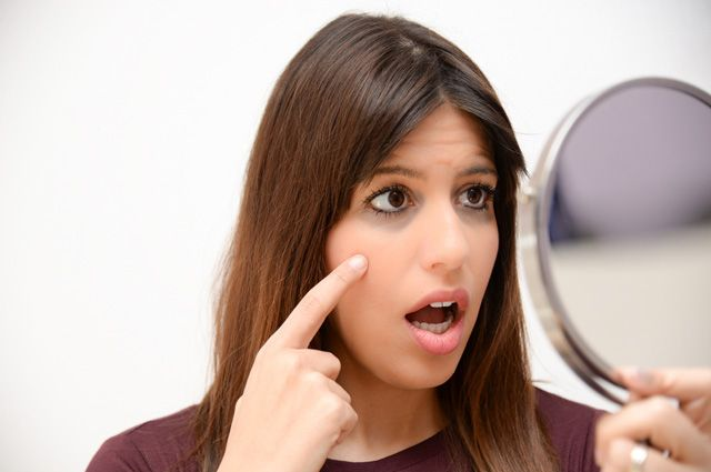 Что может быть причиной синяков под глазами?