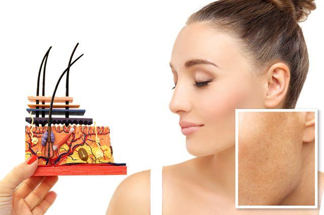 Пятновыводитель не поможет. Что нужно знать о пигментации на лице | Секреты  красоты | Здоровье | Аргументы и Факты