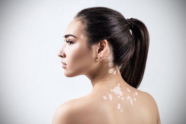Что за белые пятна возникают на коже и почему?