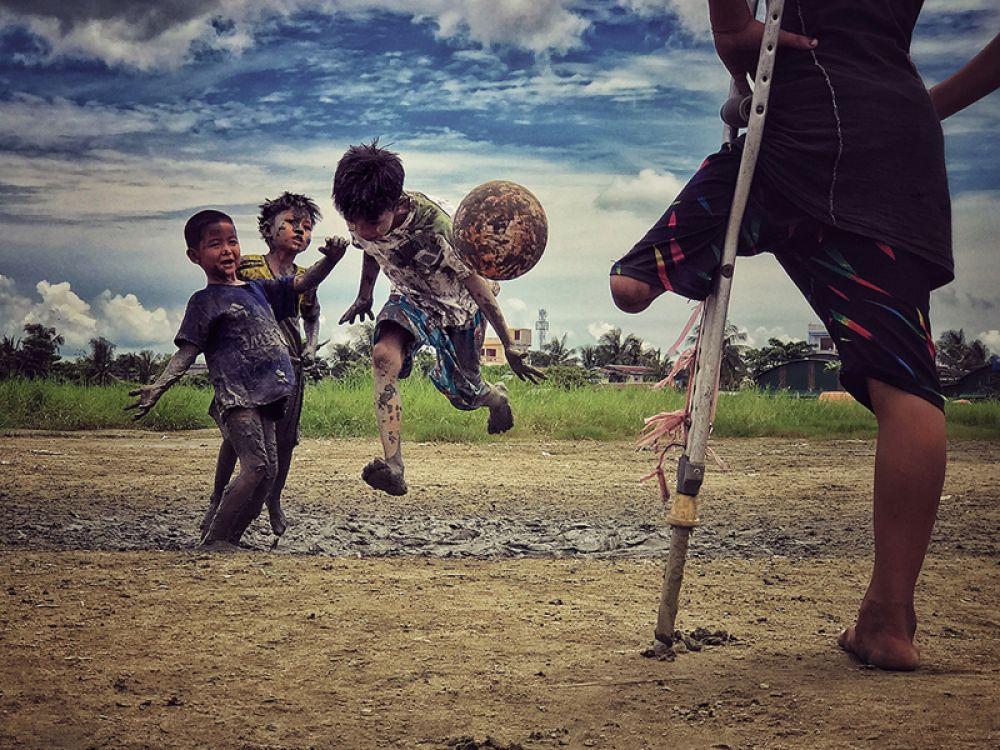 Зарни Мье Вин, Мьянма. 3-е место, фотограф года. Мальчик, потерявший ногу, наблюдает, как его друзья играют в футбол. Снято на iPhone 7 Plus.