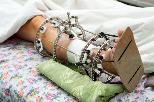 Аппарат илизарова сколько носить на ноге