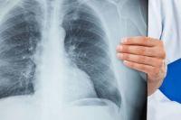 В Чернигове у воспитательницы детсада обнаружили открытую форму туберкулеза
