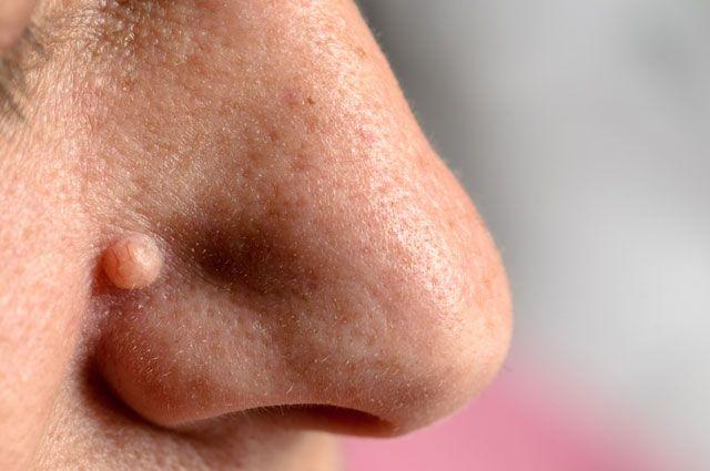 Из-за чего на теле возникают бородавки и как их лучше выводить?