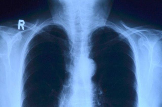 В таркосалинской больнице появился новый цифровой рентген аппарат