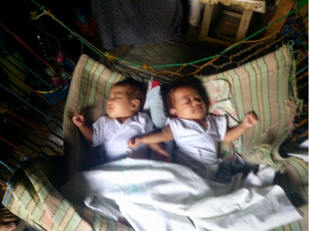 На острове также есть и пара сиамских близнецов-девочек срослись головами. Врачи отказываются оперировать девочек, поскольку боятся повредить мозг детям.