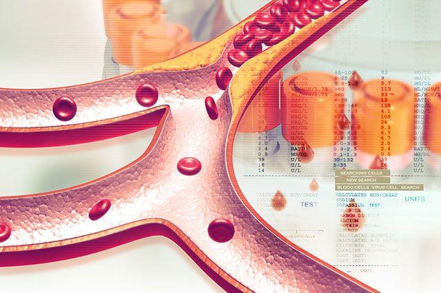 Существует ли секретное лекарство для богатых, снижающее холестерин?