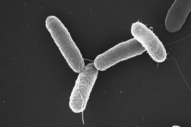 Большинство штаммов сальмонеллы неуязвимы для антибиотиков - ученые - Real estate