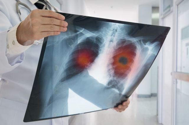 На портале «Детки!» пройдет online-конференция по борьбе с пневмонией