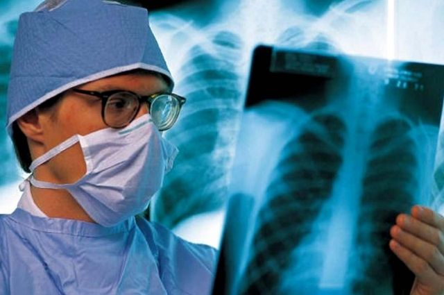 В Тюменской области снизился показатель заболеваемости туберкулезом