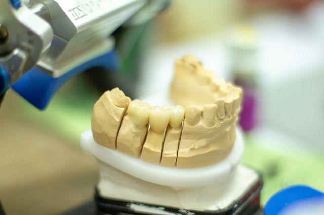 Надымчанка отсудила у стоматологии 140 тысяч рублей за плохие коронки