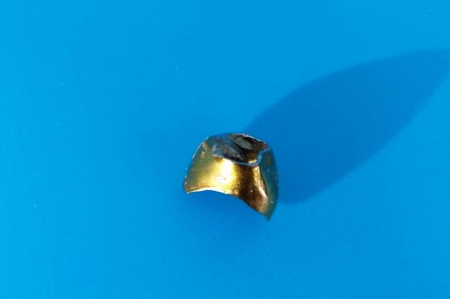 Золотую коронку обнаружили в легком