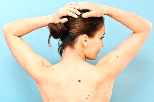 Меланома – одна из самых быстрорастущих опухолей, которая рано начинает давать метастазы.