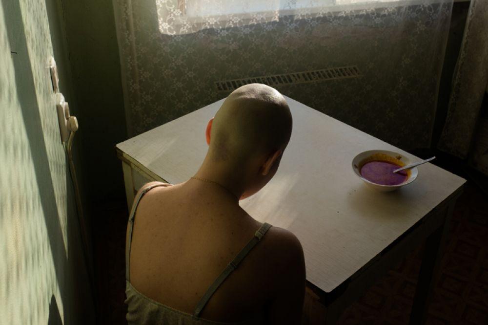 Алена Кочеткова проходит лечение от рака. Девушка не в силах съесть любимый суп.