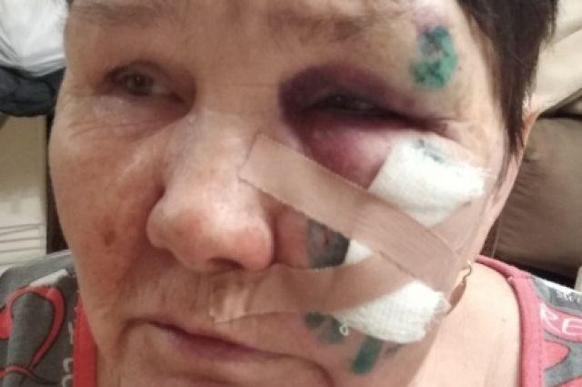 69-летняя Надежда Марина получила травму лица и груди.
