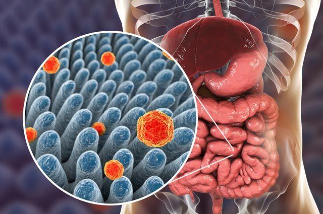 Микробы правят нами. Как микроорганизмы в кишечнике заставляют нас болеть