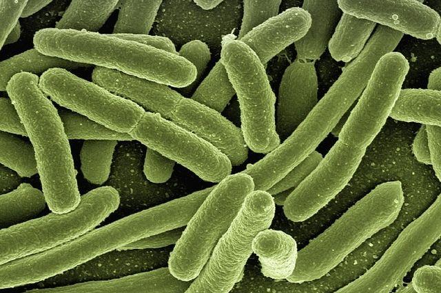 Возбудителями являются бактерии, вирусы, простейшие одноклеточные микроорганизмы.
